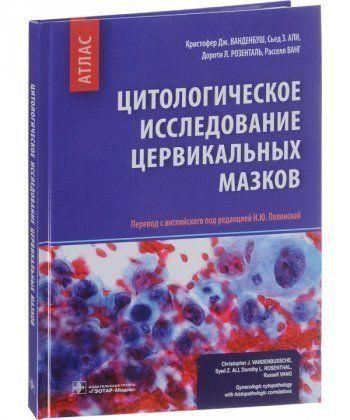 Цитологическое исследование цервикальных мазков