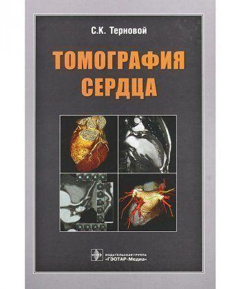 Томография сердца  - Фото 1