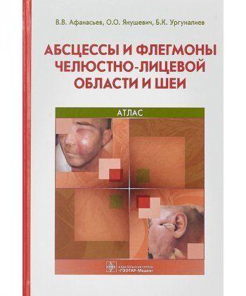 Абсцессы и флегмоны челюстно-лицевой области и шеи  - Фото 1