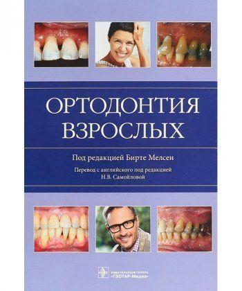 Ортодонтия взрослых